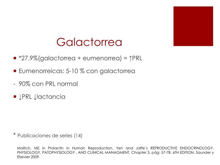 Galactorrea
