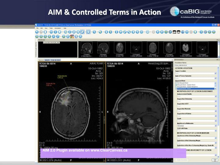 AIM & Controlled Terms in Action