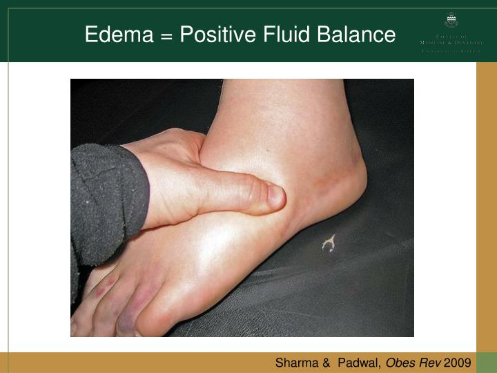 Edema = Positive Fluid Balance