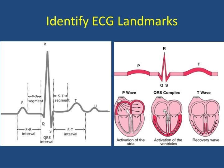 Identify ECG Landmarks