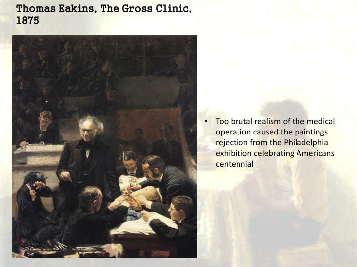 Thomas Eakins, The Gross Clinic, 1875
