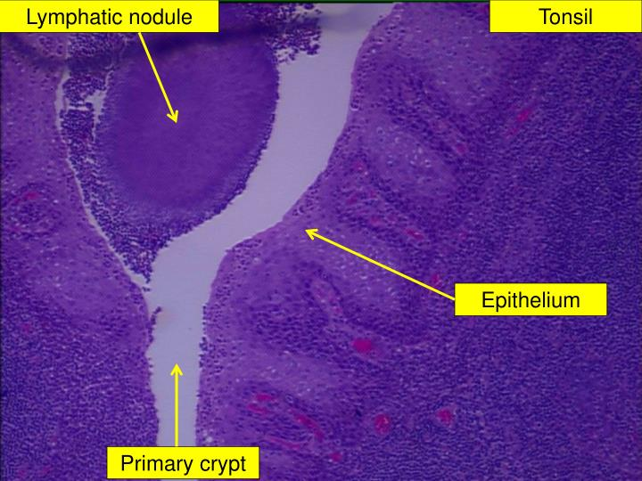 Lymphatic nodule