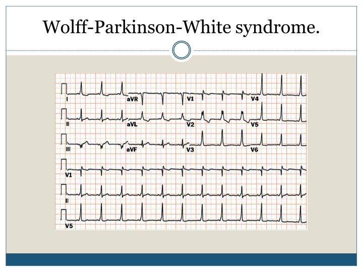 Wolff-Parkinson-White syndrome.