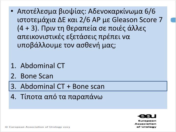 Αποτέλεσμα βιοψίας: