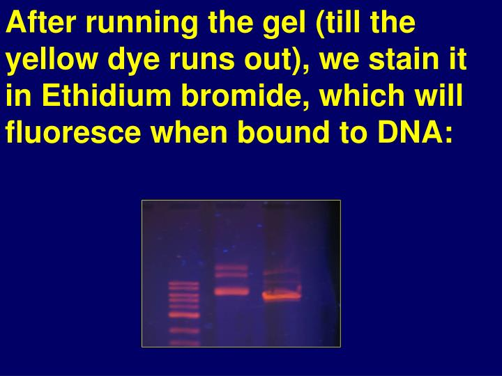 After running the gel (till the yellow dye runs out), we stain it in Ethidium bromide, which will fluoresce when bound to DNA: