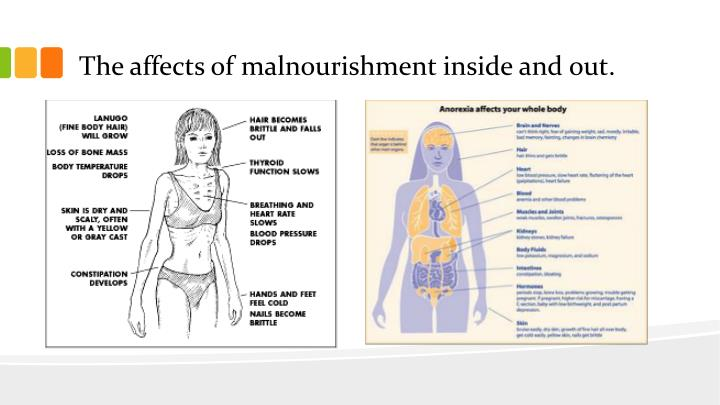 The affects of malnourishment inside and out.