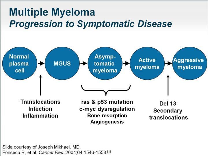 Newly diagnosed asymptomatic multiple myeloma