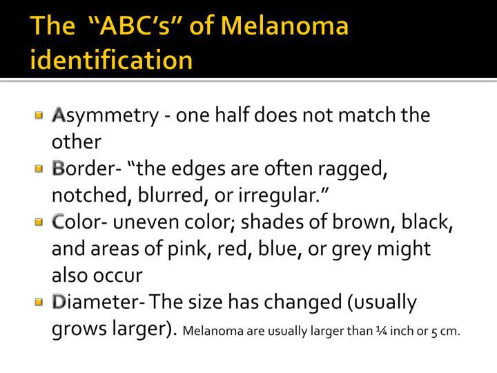 """The  """"ABC's"""" of Melanoma identification"""