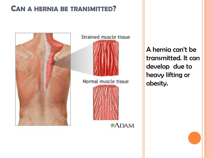 A hernia can't be transmitted. It can develop  due to heavy lifting or obesity.