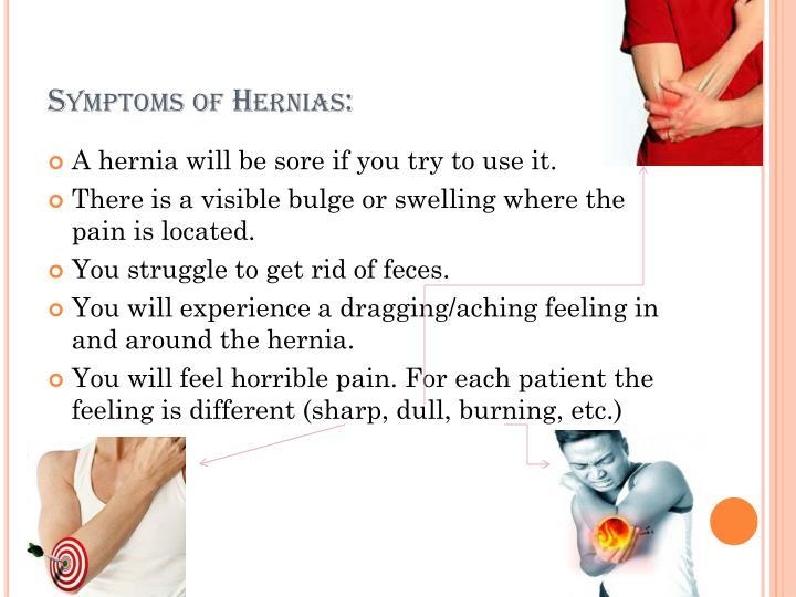 Symptoms of Hernias: