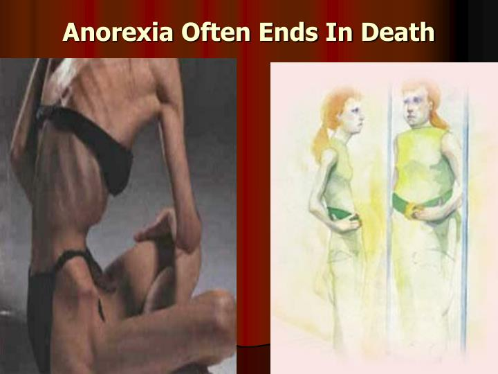 Anorexia Often Ends In Death
