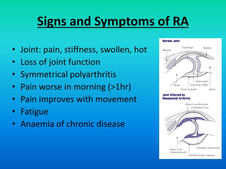 Signs and Symptoms of RA