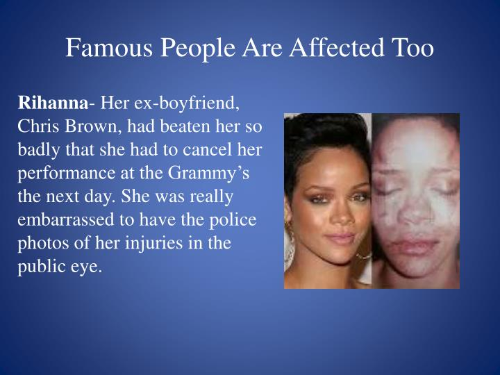 Famous People Are Affected Too