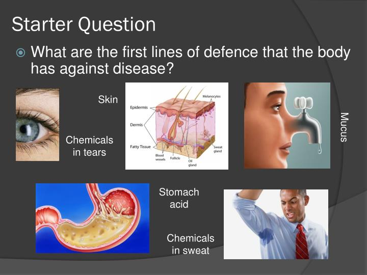 Starter question