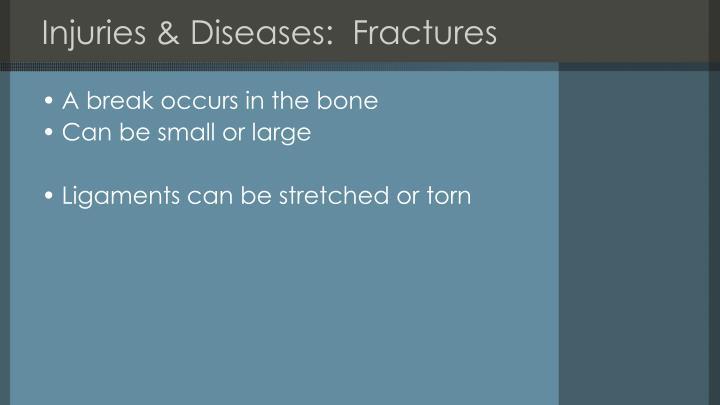 Injuries & Diseases:  Fractures