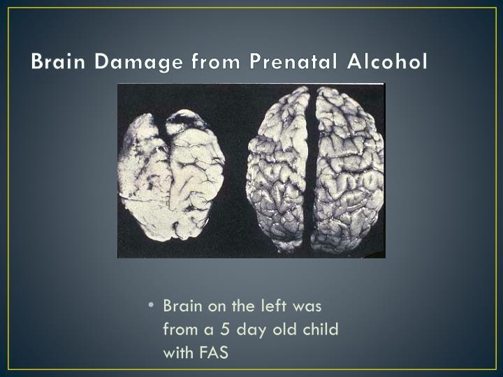 Brain Damage from Prenatal Alcohol