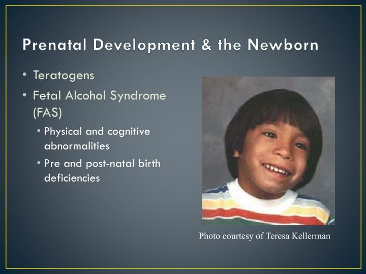 Prenatal Development & the Newborn