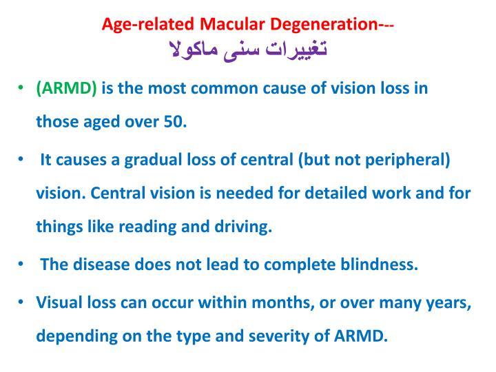 Age-related Macular Degeneration-