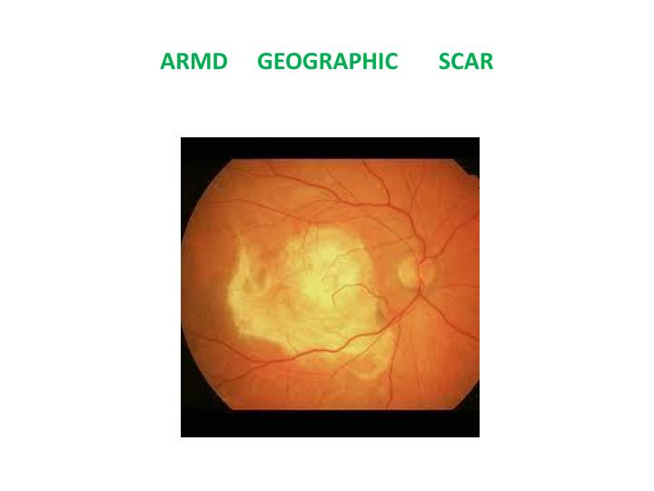 ARMD     GEOGRAPHIC       SCAR