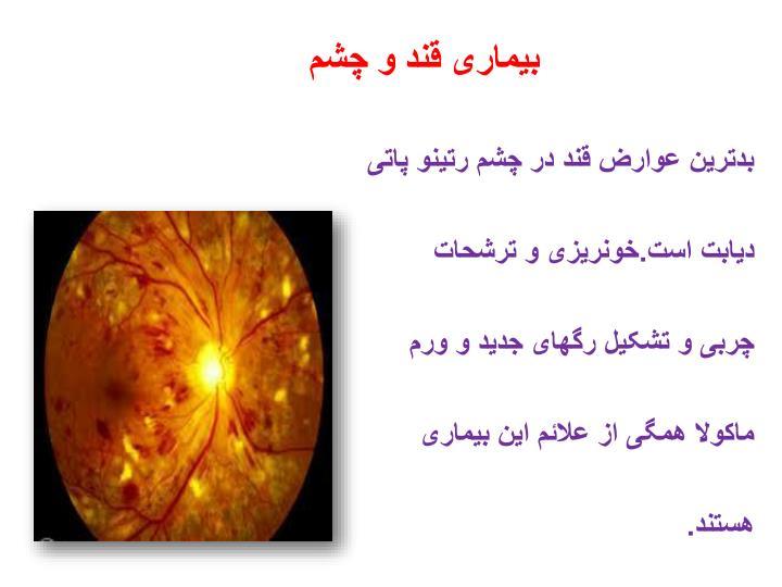 بیماری قند و چشم