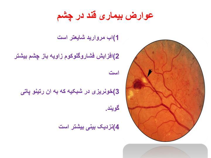 عوارض بیماری قند در چشم