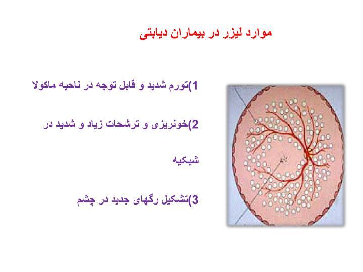 موارد لیزر در بیماران دیابتی