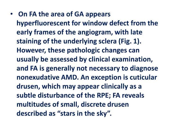 On FA the area of GA appears