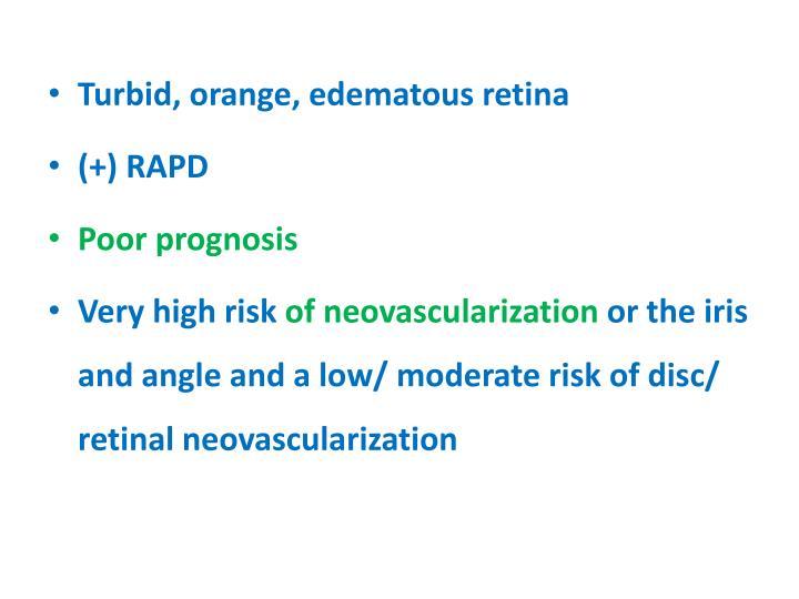 Turbid, orange, edematous retina