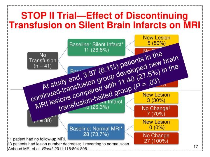 STOP II Trial—Effect of Discontinuing Transfusion on Silent Brain Infarcts on MRI