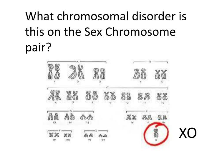 What chromosomal disorder is this on the Sex Chromosome pair?