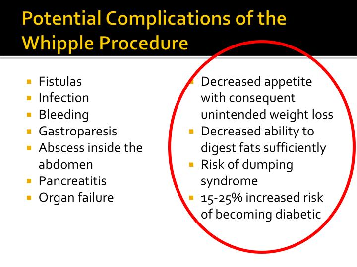 Ppt Pancreatic Cancer Amp The Whipple Procedure Powerpoint