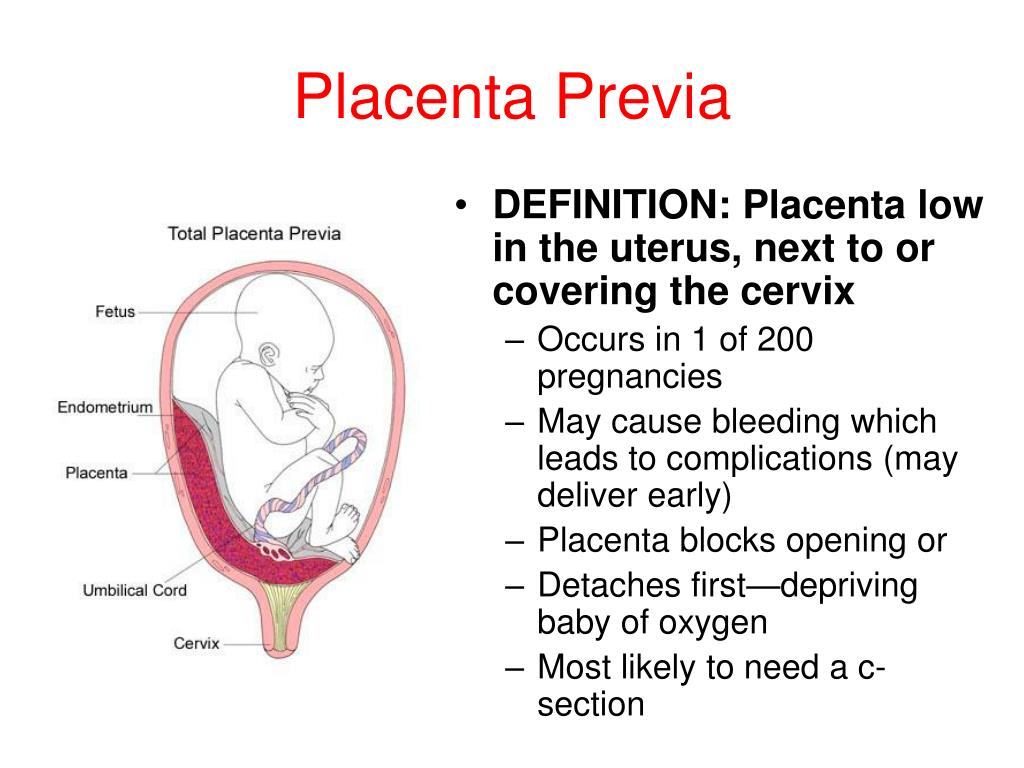 PPT - Complications of Pregnancy PowerPoint Presentation ...