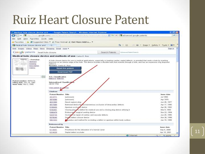 Ruiz Heart Closure Patent