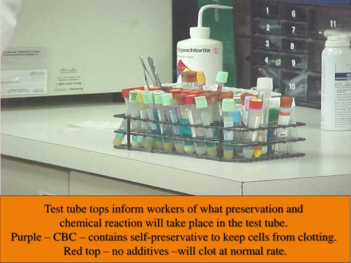Test tube tops informs workers of what preservation and chemical reaction that will take place in the test tube. Purple – CBC – contains self preservative to keep cells from clotting.  Red top – no additives –will clot at normal rate.
