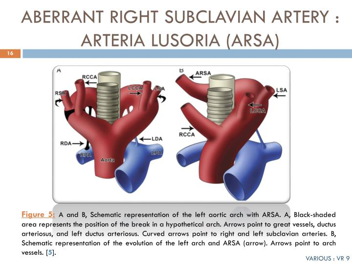 PPT - VARIANTS OF AORTIC ARCH : OUR EXPERIENCE PowerPoint ...