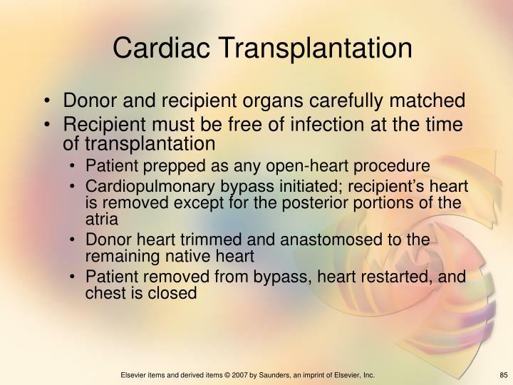 Cardiac Transplantation