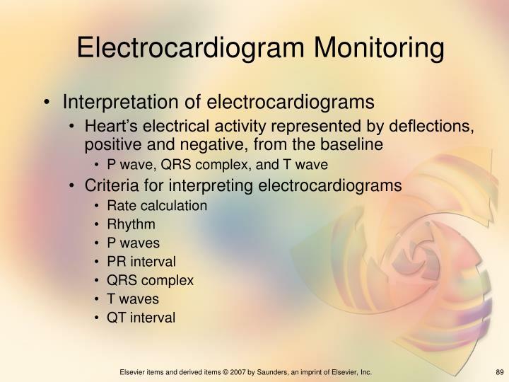 Electrocardiogram Monitoring