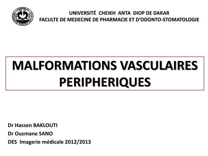 Malformations vasculaires peripheriques