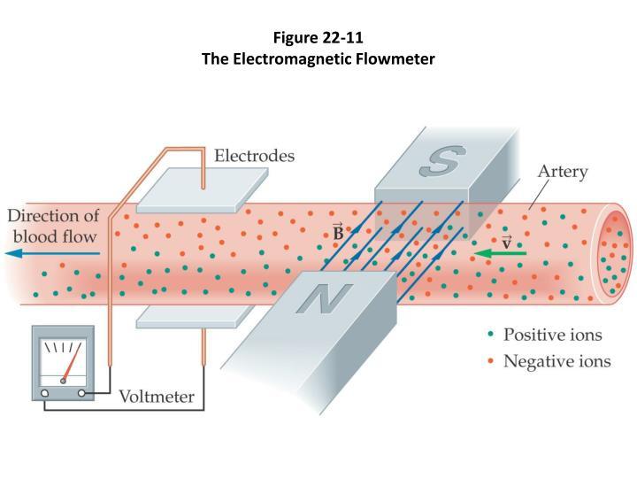 Figure 22-11