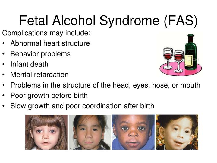 fetal alcohol syndrome outline A hallmark of in utero alcohol exposure is delayed maturation of the nervous system 2 x 2 abel, el fetal alcohol abuse syndrome revisited plenum press , new york  1997 google scholar see all references , 26 x 26 jones, kl and smith, dw recognition of the fetal alcohol syndrome in early infancy.