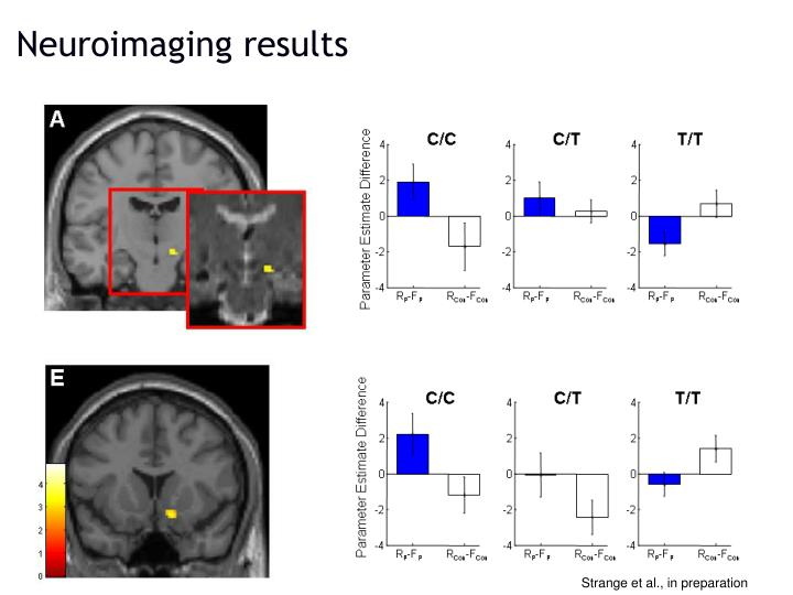 Neuroimaging results