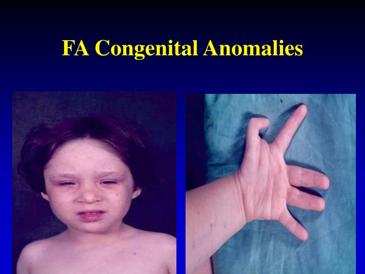 FA Congenital Anomalies