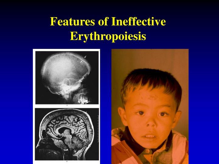Features of Ineffective Erythropoiesis