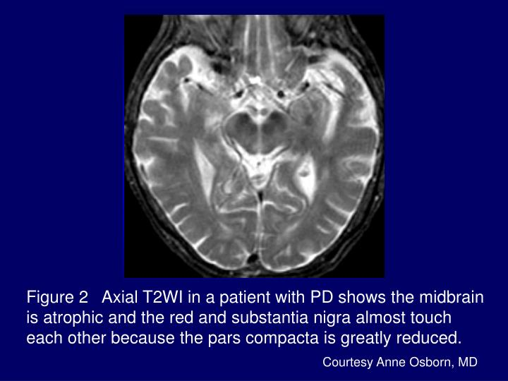 Figure 2   Axial T2WI in a patient with PD shows the midbrain is atrophic and the red and substantia nigra almost touch each other because the pars compacta is greatly reduced.
