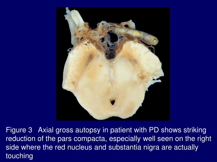 Figure 3   Axial gross autopsy in patient with PD shows striking reduction of the pars compacta, especially well seen on the right side where the red nucleus and substantia nigra are actually touching