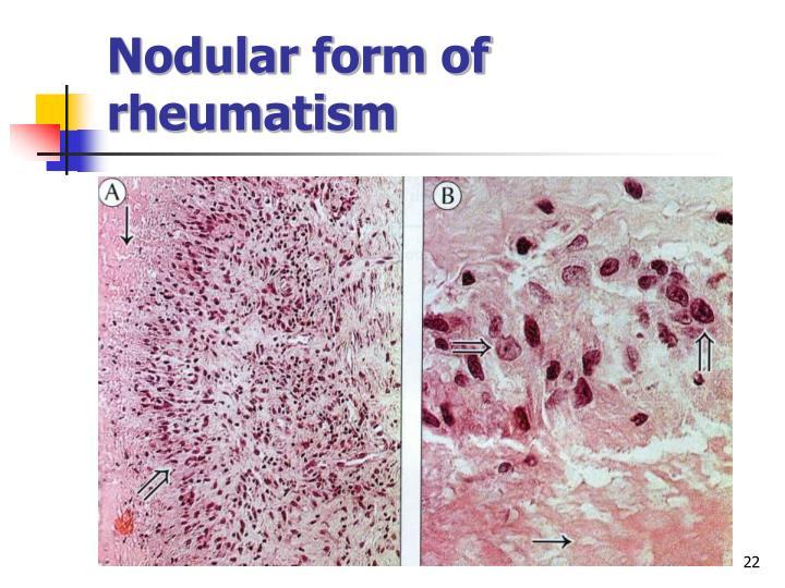 Nodular form of rheumatism