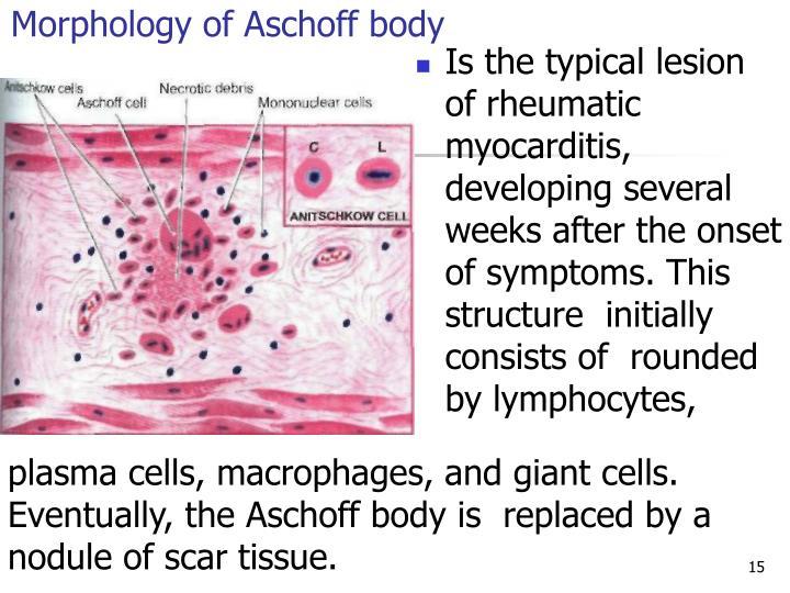 Morphology of Aschoff body