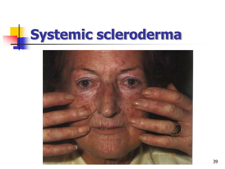 Systemic scleroderma