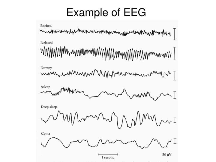 Example of EEG