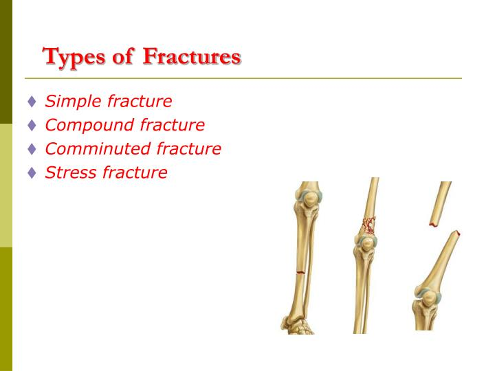 Ppt Fractures And Bone Disease Powerpoint Presentation Id2755047